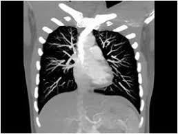 CT SCAN THORAX (CONTRAST)