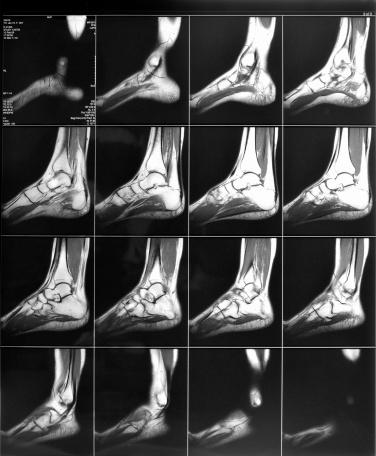 CT SCAN FOOT (PLAIN)