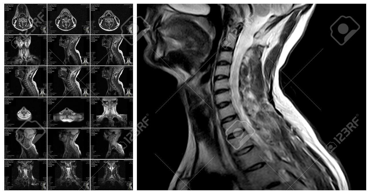 MRI CERVICAL SPINE (CONTRAST)