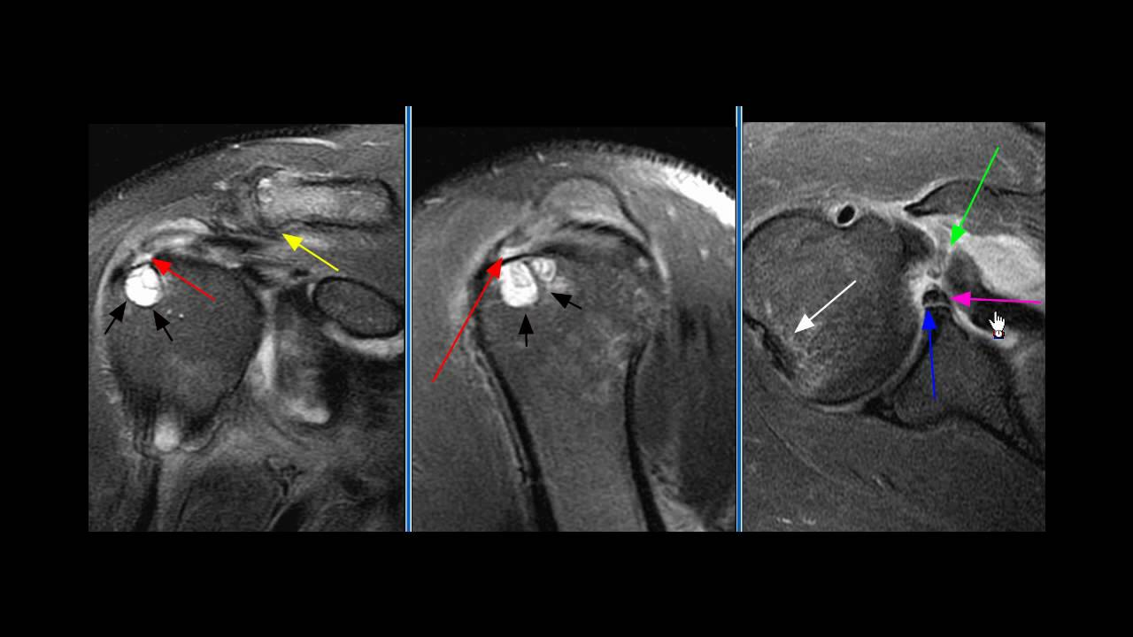 MRI BOTH SHOULDER (CONTRAST)