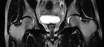 MRI PELVIC / HIP (CONTRAST)