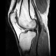 MRI KNEE (CONTRAST)