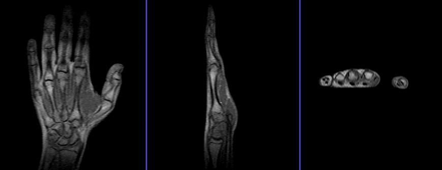 MRI BOTH HAND (CONTRAST)