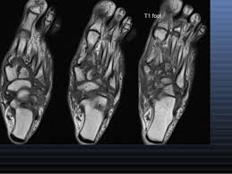 MRI FOOT (CONTRAST)