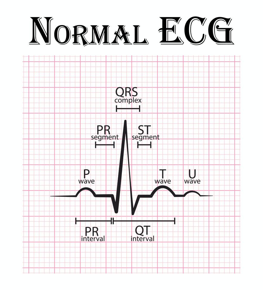 ECG HOME
