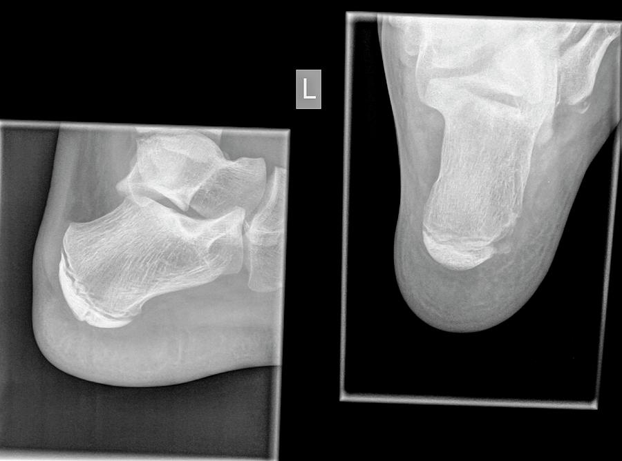 X-RAY AXIAL/LATERAL VIEW BOTH CALCANEAM