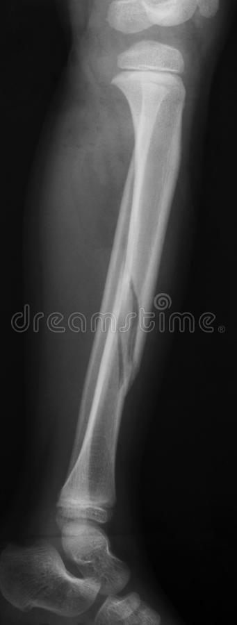 X-RAY LATERAL VIEW BOTH LEG