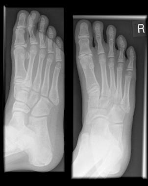 X-RAY AP VIEW BOTH FOOT