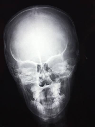 X-RAY AP VIEW SKULL/ HEAD