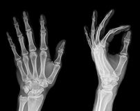 X-RAY AP/LATERAL VIEW HAND (ONE)