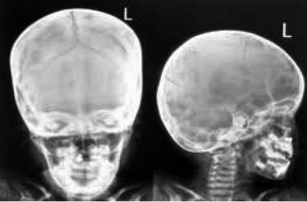 X-RAY AP/LATERAL VIEW  FACE