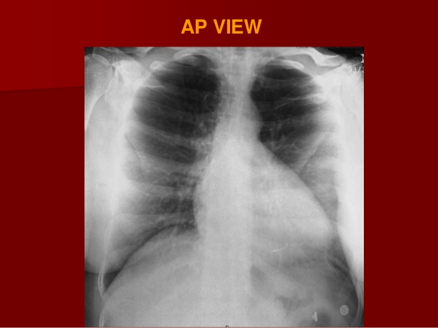 X-RAY AP VIEW CHEST