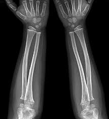 X-RAY LATERAL VIEW BOTH FOREARM