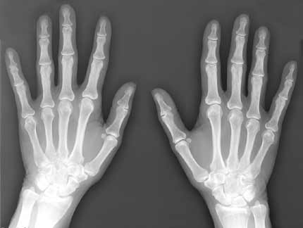 X-RAY AP VIEW BOTH HAND