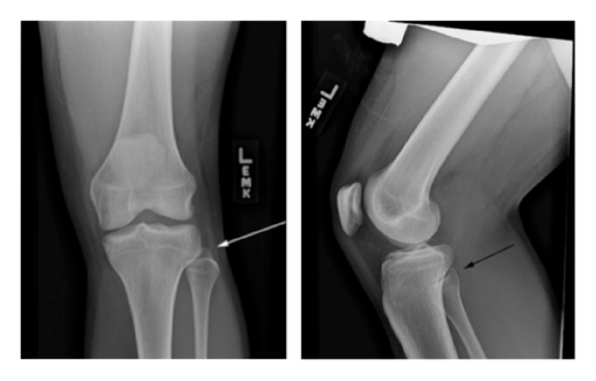 X-RAY AP/LATERAL VIEW LT KNEE (ONE)
