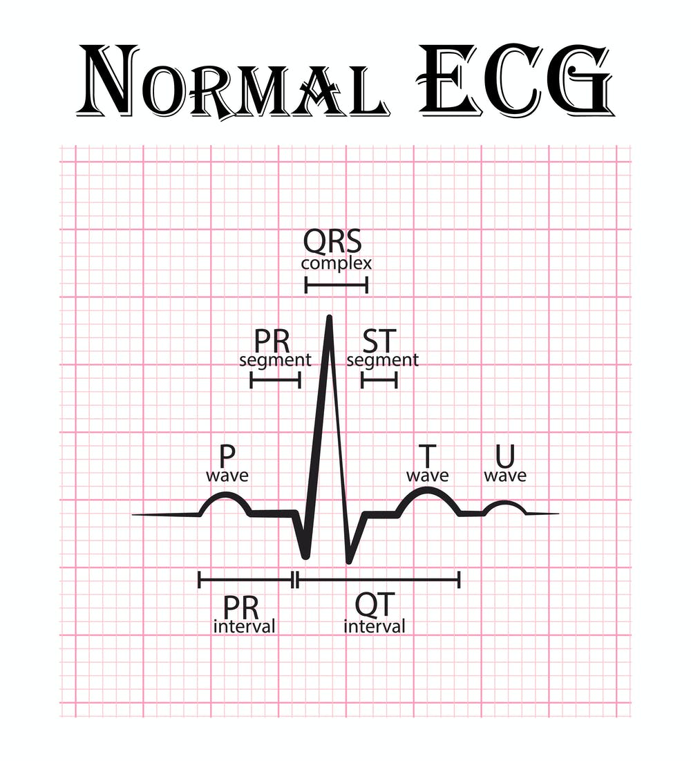 ECG EMERGENCY