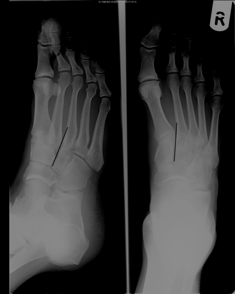 X-RAY AP/LATERAL VIEW FOOT (ONE)