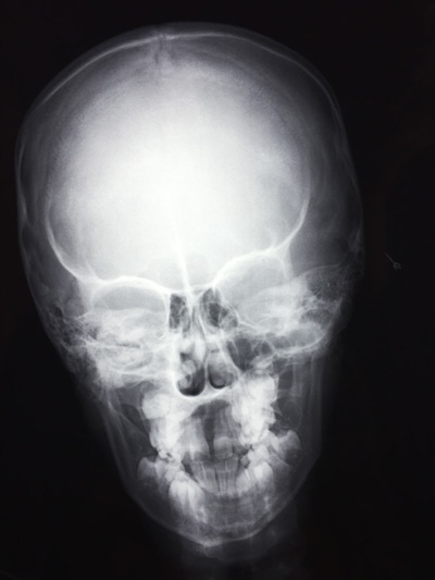 X-RAY AP VIEW SKULL/ HEAD